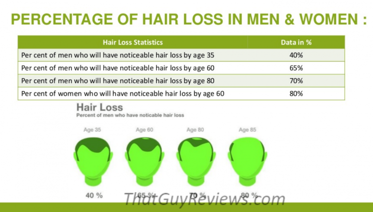 Hair Loss in Men and Women statistics.
